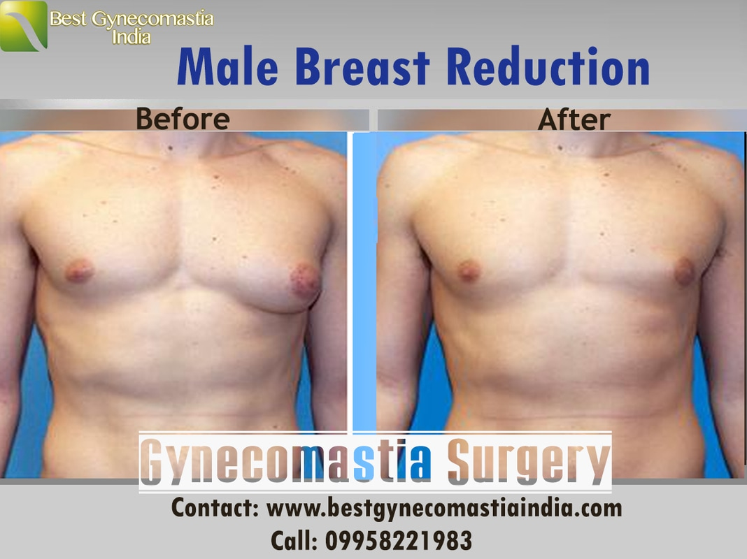 A Male Breast Reduction Gynecomastia Procedure Gynecomastia