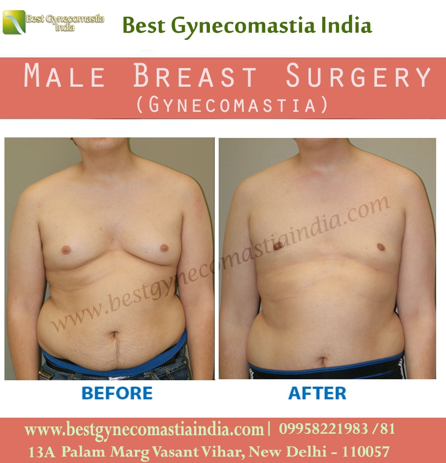 Blog Archives Gynecomastia Surgery Cost India